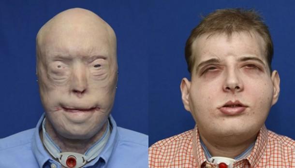 Inilah Operasi Transplantasi Wajah Paling Rumit di Dunia