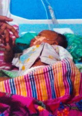 Afriqa Jumaroh, balita penderita jantung bocor di kabupaten Lampung Tengah. | Raeza/Jejamo.com