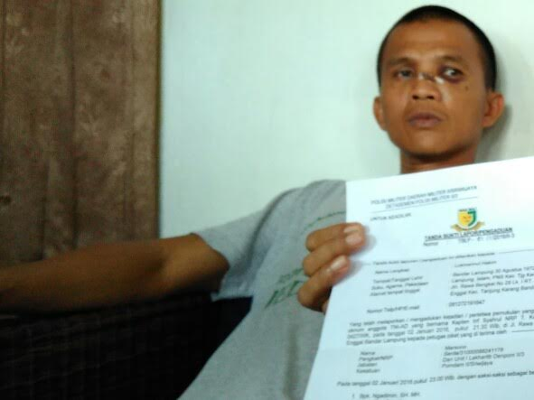 Lukmanul Hakim (43), pegawai negeri sipil (PNS) Kecamatan Tanjungkarang Pusat, warga Jalan Rawa Bengkel, Enggal Bandar Lampung, korban pemukulan yang diduga dilakukan oknum anggota TNI AD | Andi/jejamo.com