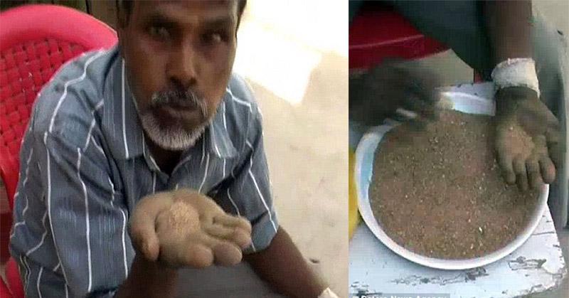 Hans Raj, pria asal India yang memiliki koby aneh makan pasir dan kerikil. | Ist.