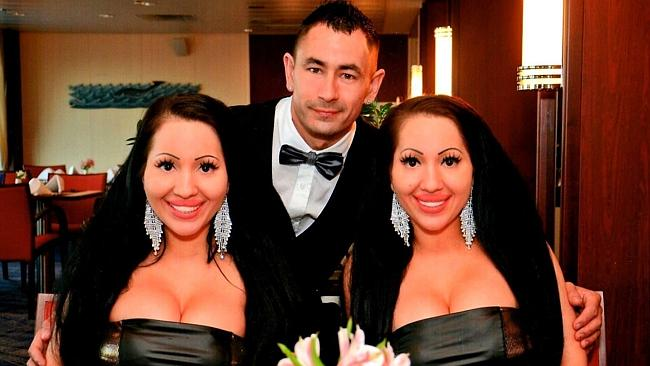 Wanita Kembar Identik Ini Selalu Berbagi Segalanya Termasuk Kekasih