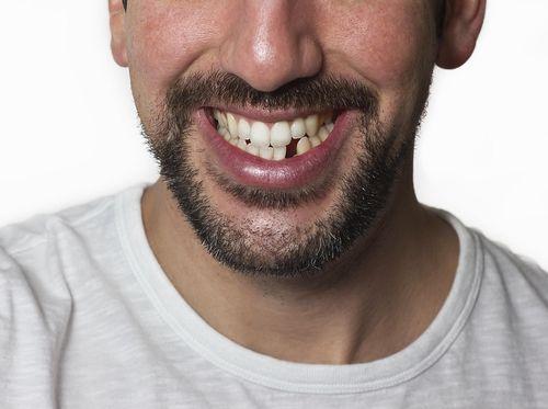 Aneh Tapi Nyata! Gigi Meledak di Dalam Mulut