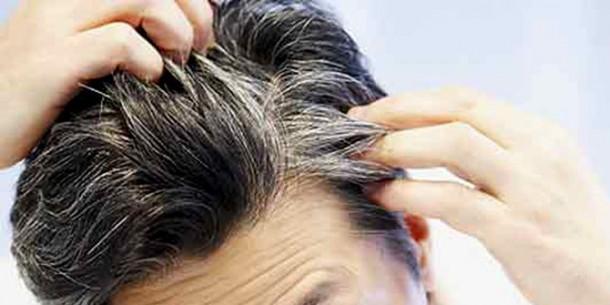 Ini Bahaya Mencabut Uban Bagi Kesehatan Kulit Kepala