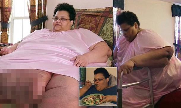 Kisah Wanita Berbobot 340 Kilogram yang Tak Lagi Bisa Berjalan