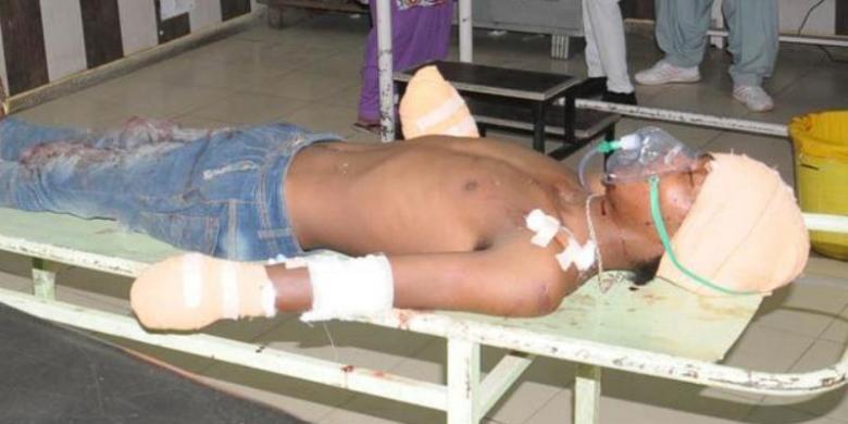 Tersangka pemerkosa bayi di India dirawat di rumah sakit usai tangannya dipotong oleh ayah korban. | Ist.