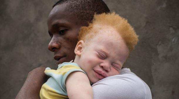 Warga Albino di Afrika Terus Dibantai, Organnya Digunakan untuk Ritual Ilmu Sihir