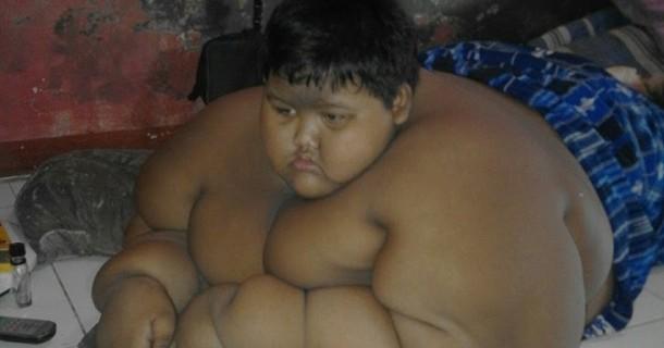 Inilah 5 Anak Paling Gendut di Dunia