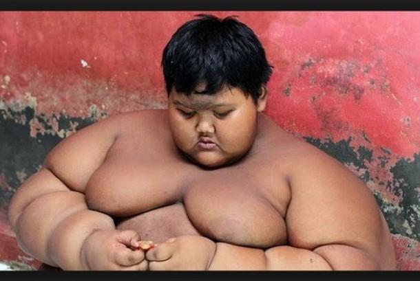 Arya Permana (10), bocah penderita obesitas ekstrem asal Kabupaten Karang, Jawa Barat | ist
