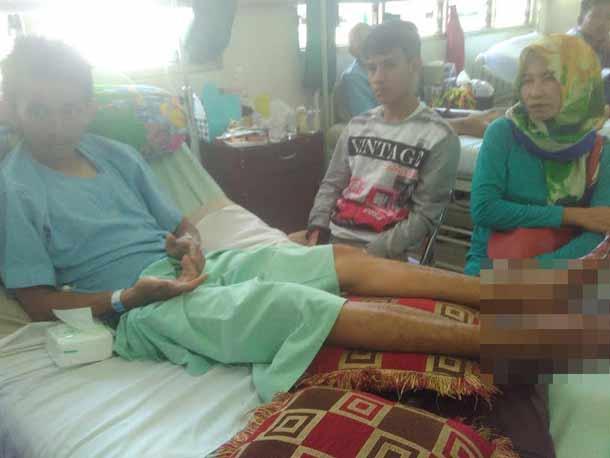 Ikuti Kegiatan Pecinta Alam, Mahasiswa Unila Luka Parah di Kaki dan Harus Dirawat di Rumah Sakit