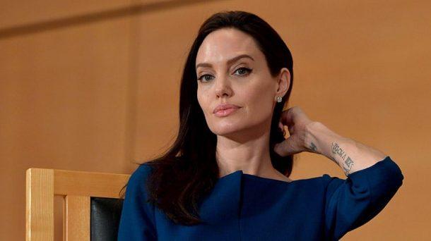 Ingin Mirip Angelina Jolie Wanita asal Iran Ini Operasi Plastik 50 Kali, Hasilnya Mengerikan